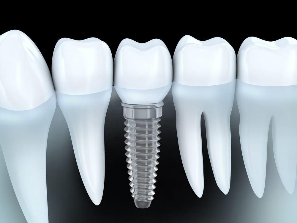 Dental Implants in Pensacola, FL
